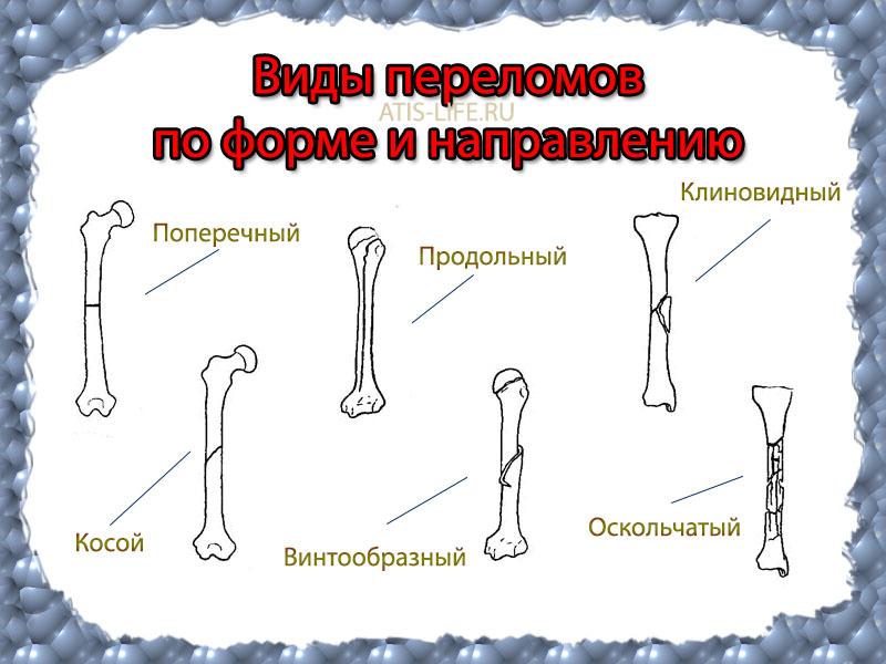 переломы костной ткани: виды