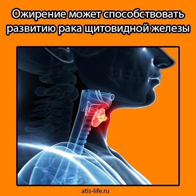 Ожирение и рак щитовидной железы
